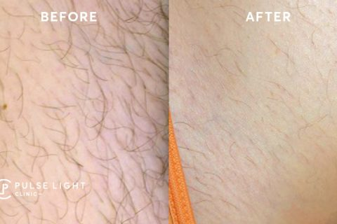 Results after bikini laser hair removal at Pulse Light Clinic London