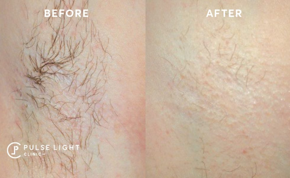 After course of laser hair removal treatments at Pulse Light Clinic London