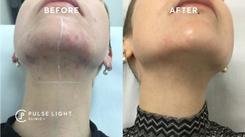 Ingrown hairs on neck and after laser hair removal