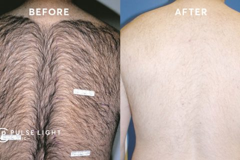 Before and after on mens back laser hair removal