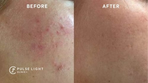 Acne before and after on cheeks