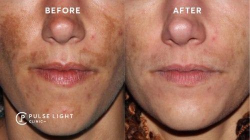 Before and after a PicoSure Skin Pigmentation