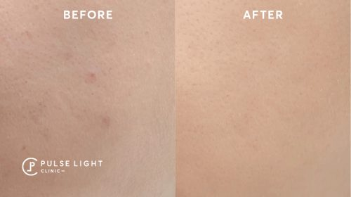 Derma pen Microneedling Before and after picture