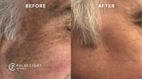 Before and after of a man after having PicoSure treatment to reduce his wrinkles