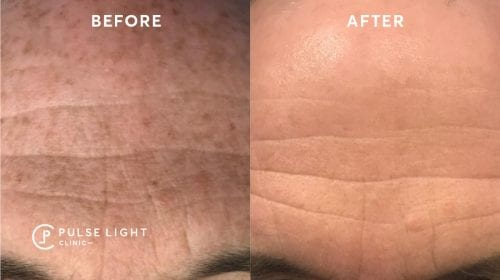 Before and after of mans forehead lines with a skin pigmentation treatment