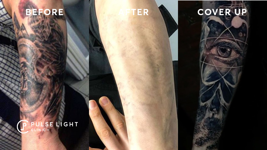 Tattoo before and after with a new cover up tattoo