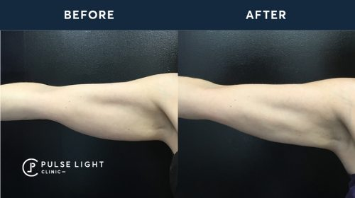 Before and after 1 CoolSculpting treatment on a the arms area