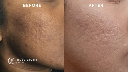 Before and after a lady's face treating acne scars at Pulse Light Clinic