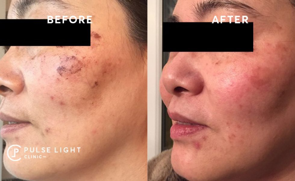LED Phototherapy Pigmentation Results