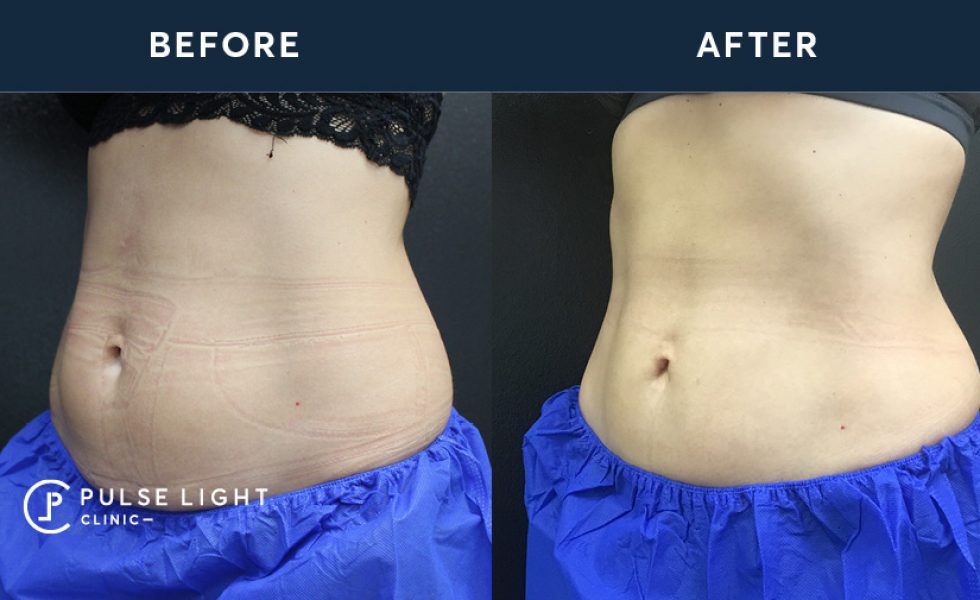 Before and after of a clients CoolSculpting stomach