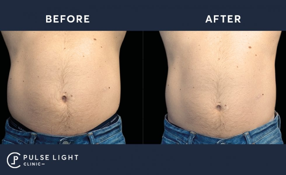 Emsculpt Tummy Before and After