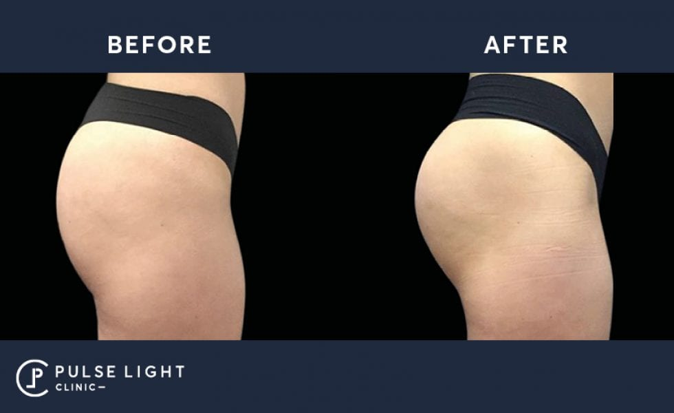 Emsculpt bum lift