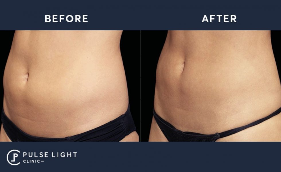 Before and after taken of a woman's abdomen using Emsculpt