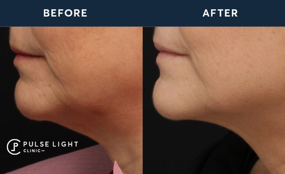 Before and after treatment of a ladies face after Profound treatment at Pulse Light Clinic
