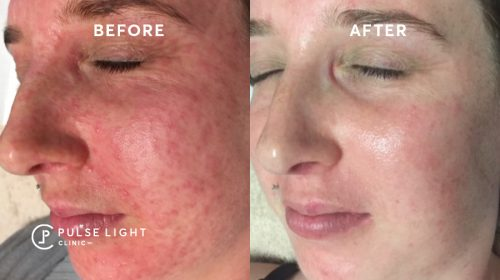 A lady's face very red and blotchy before getting hydra facial treatment