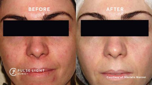 A lady's face after a rosacea treatment