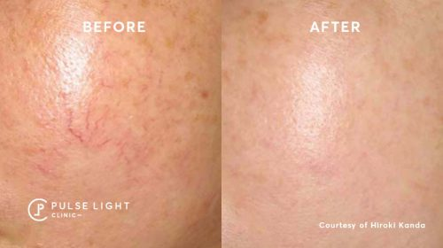 A close up of a rosacea before and after