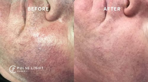 A male client's before and after a rosacea treatment