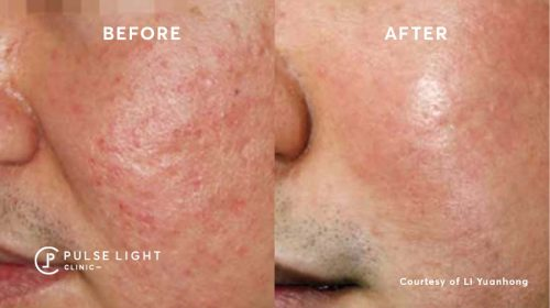 A close up of a mans check after a Rosacea treatment