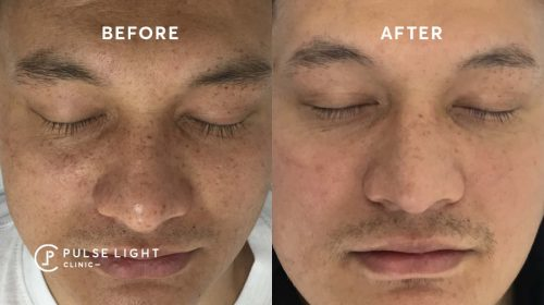 After 1 pigmentation treatment of a man's face