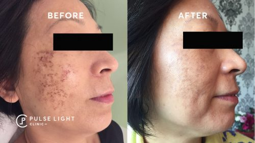 A lady's face with pigmentation before getting hydra facial treatment