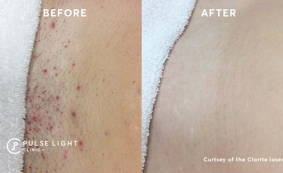 Bikini before and after laser hair removal at Pulse Light Clinic