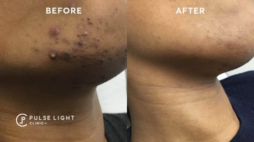 Dark Skinned lady's result after laser hair removal
