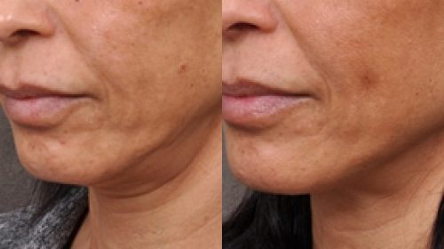 Anti ageing before and after