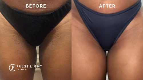 Before and after bikini laser hair removal treatments at Pulse Light Clinic