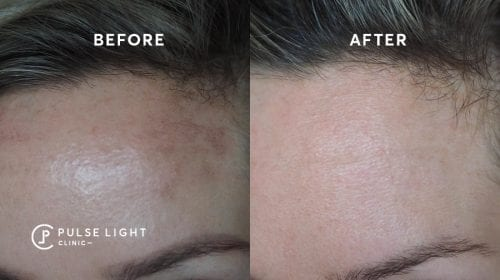 Before and after receiving skin pigmentation treatments