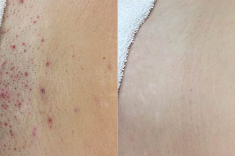 Before and after ingrown hair removal