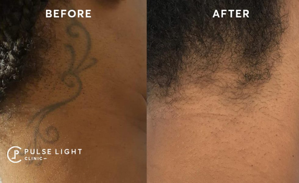 Before and after laser tattoo removal on dark skin