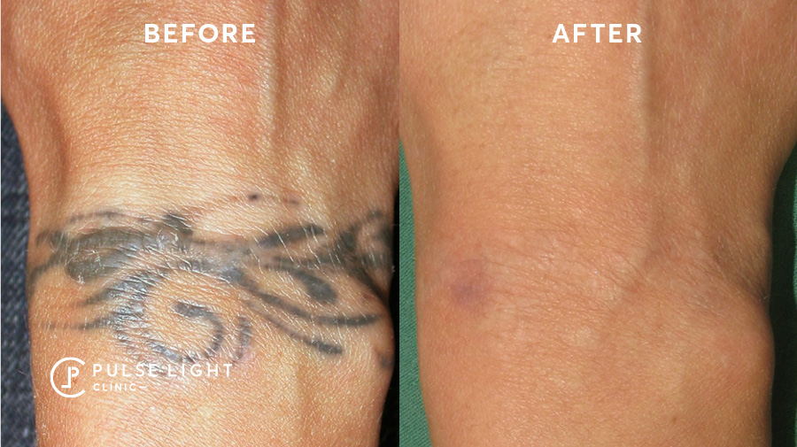 Revlite tattoo removal machine before and after