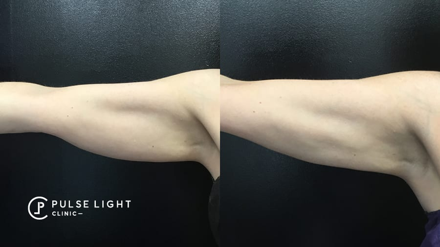 Before and after CoolSculpting on woman's arms