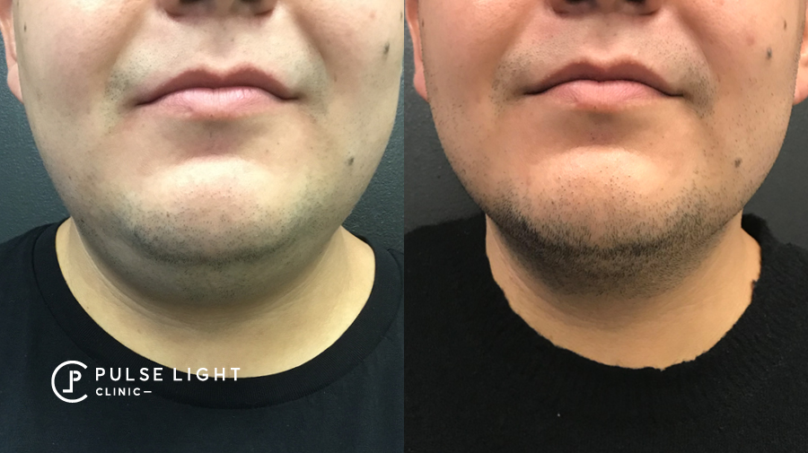 Before and after fat freezing on chin