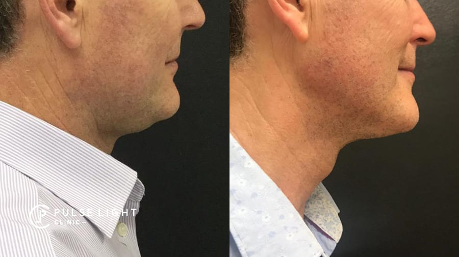 Man double chin before and after