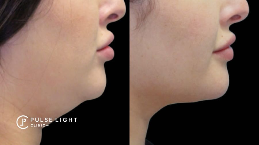 Before and after of lady's double chin