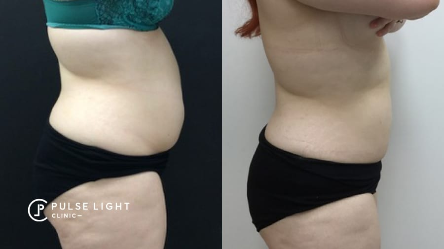 Reduction of fat from lady's abdomen area