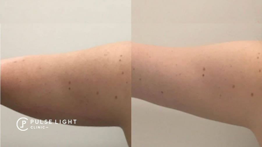 Before and after fat reduction on arms