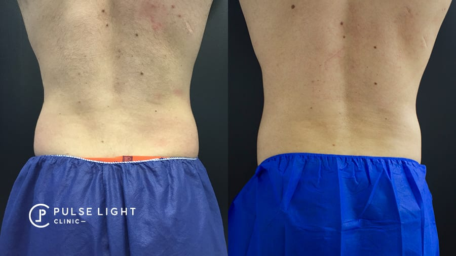 Man before and after CoolSculpting on Love handles