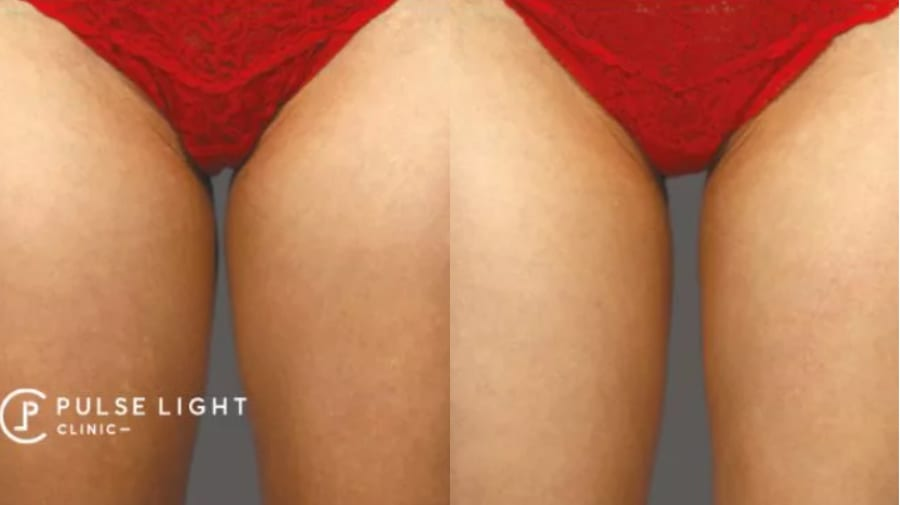 Before and after CoolSculpting on ladies inner thighs