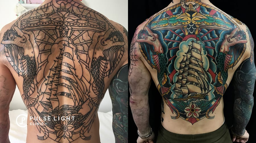 Cover up tattoo removal at Pulse Light Clinic London