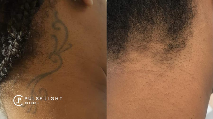 Tattoo removal on dark skin lady near neck area