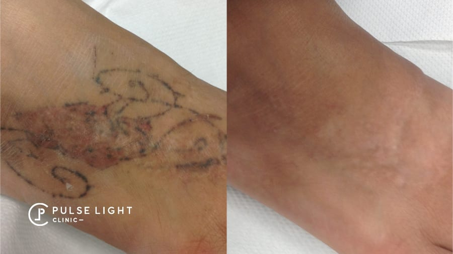 Tattoo gone on lady's foot after laser tattoo removal at Pulse Light Clinic
