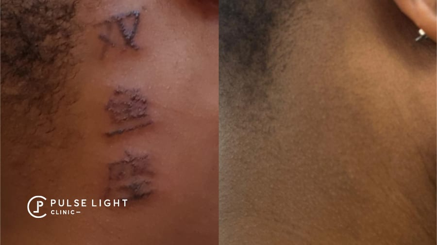 Tattoo removal on dark skined lady at Pulse Light Clinic