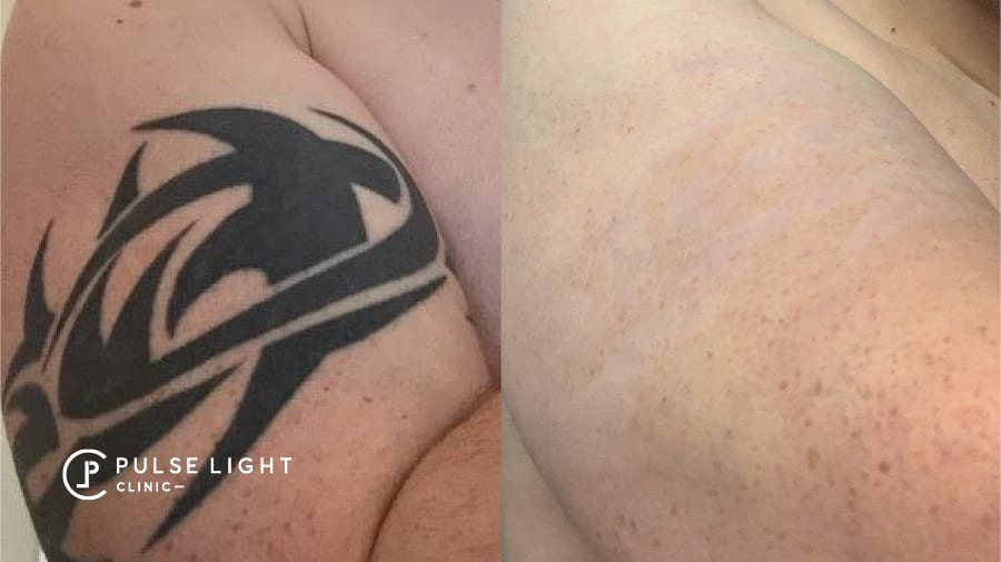 Tribal tattoo before and after