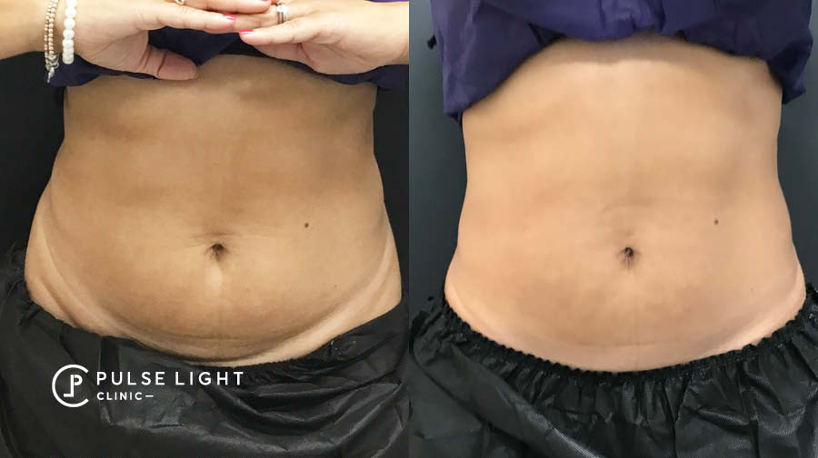 CoolSculpting abdomen female before and after profile picture