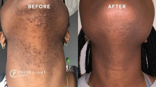 Before and After Laser Hair Removal Chin Dark Skin