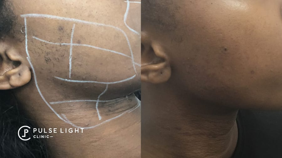 A dark skinned lady before and after of face and neck region - reduction of ingrown hairs and hair reduction