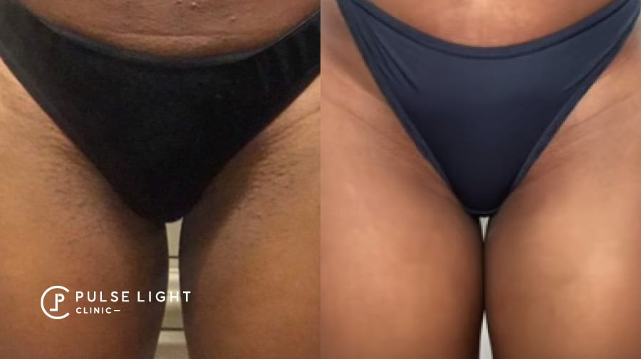 Lady's bikini before and after laser hair removal